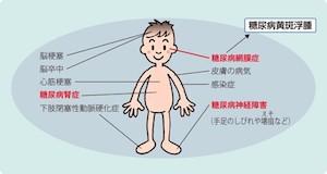 糖尿病網膜症